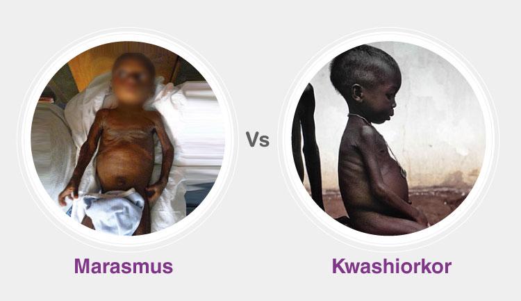 Difference Between Kwashiorkor and Marasmus