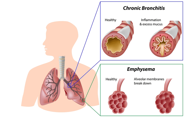 Difference between Asthma and Chronic Obstructive Pulmonary Disease